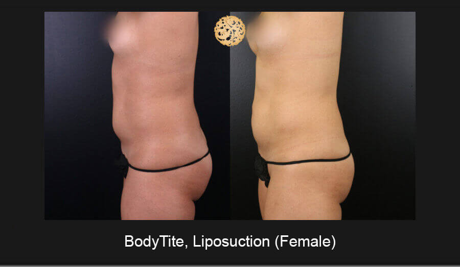 BodyTite-Liposuction-Female-4