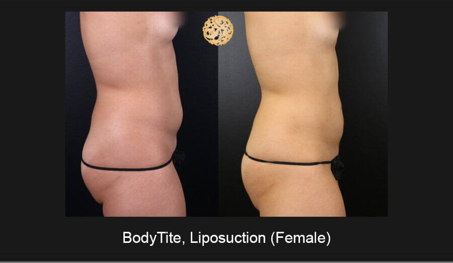 BodyTite-Liposuction-Female-5