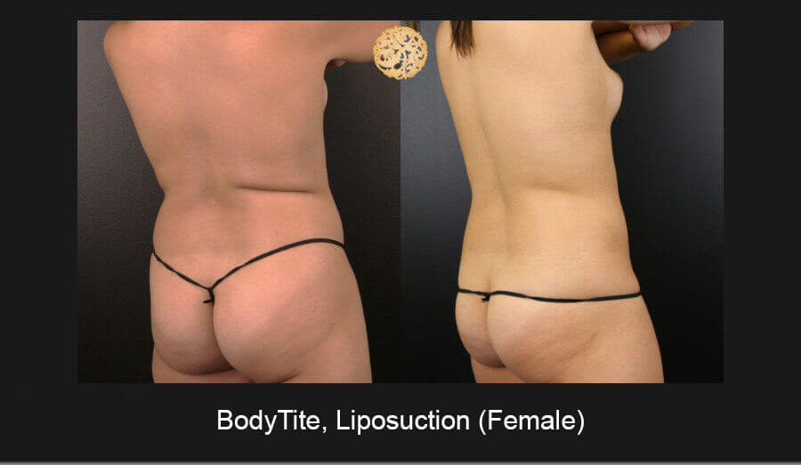 BodyTite-Liposuction-Female-6