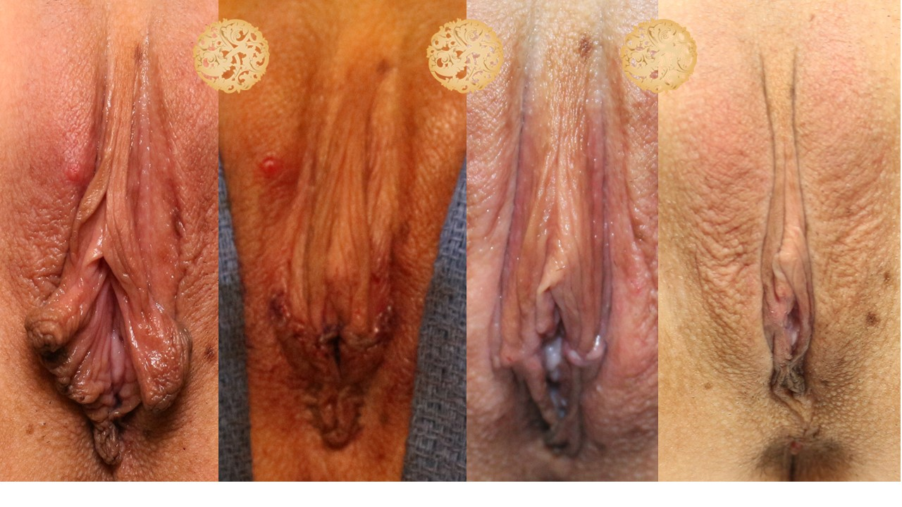 Feminine Rejuvenation Before and After Gallery