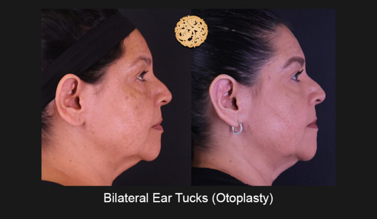 Earlobe Reconstruction