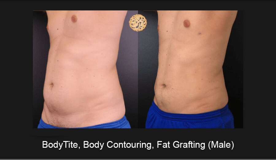 BodyTite-Body-Contouring-Male-2