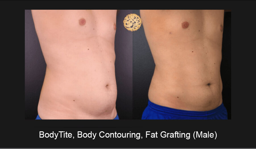BodyTite-Body-Contouring-Male-3
