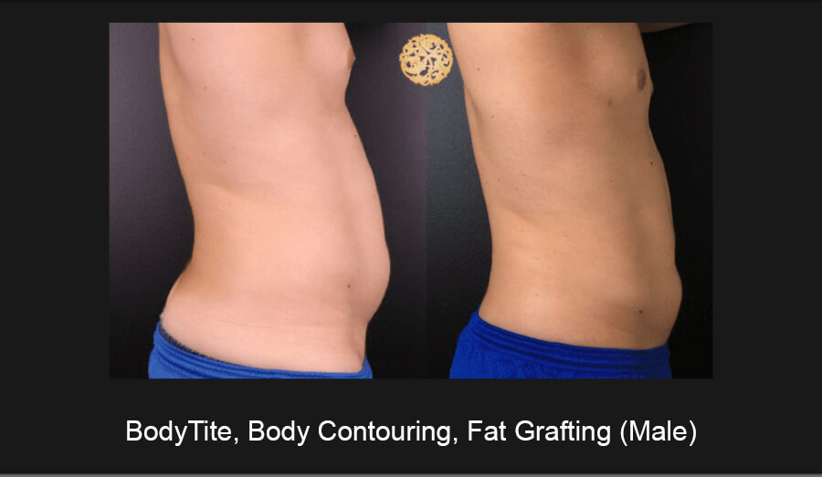BodyTite-Body-Contouring-Male-5