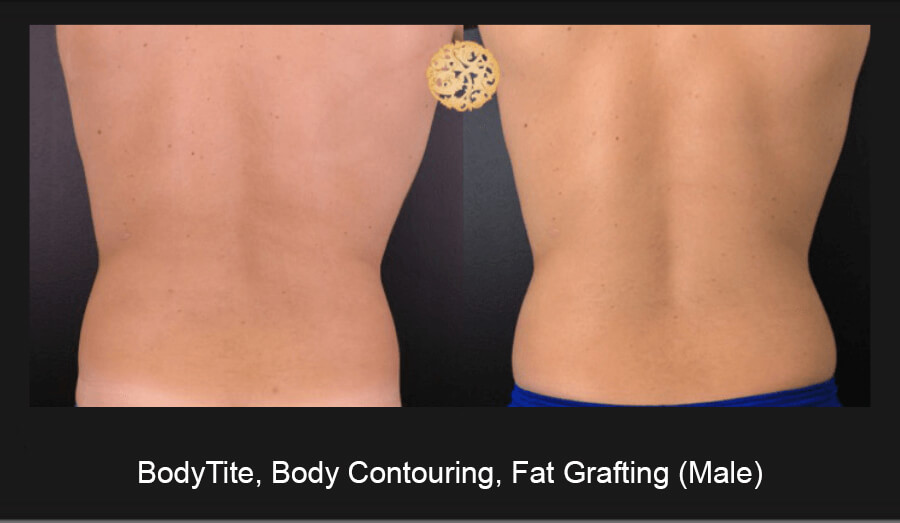 BodyTite-Body-Contouring-Male-6