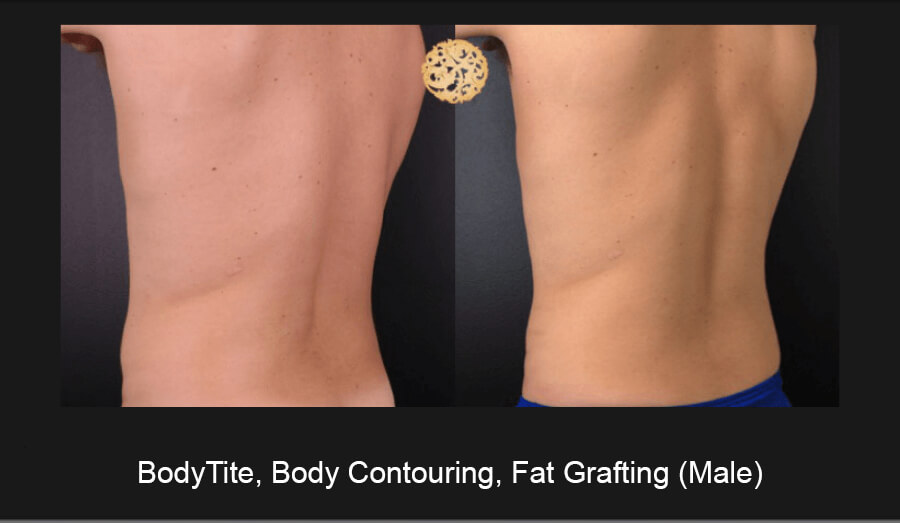 BodyTite-Body-Contouring-Male-7