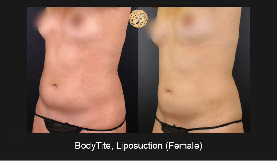 BodyTite-Liposuction-Female-3