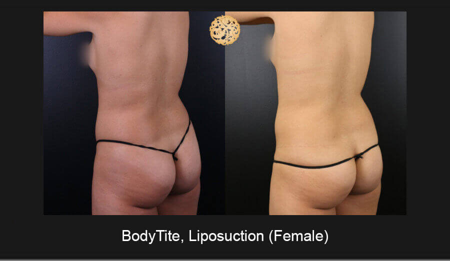 BodyTite-Liposuction-Female-7