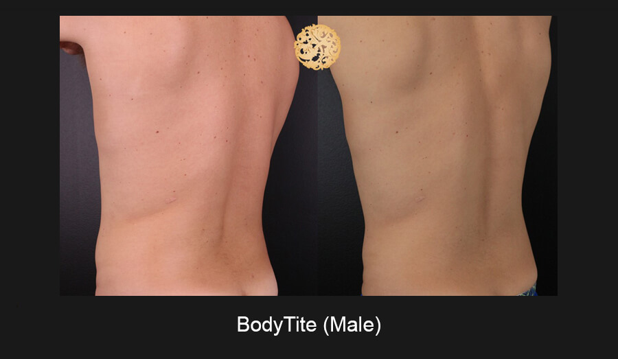 BodyTiteMale-7