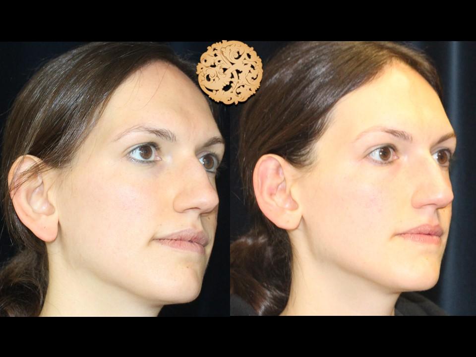 Bilateral Ear Tucks (Otoplasty) Gallery