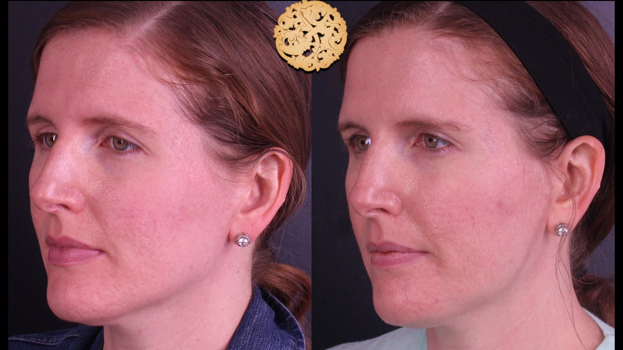 Halo Laser Treatment Gallery