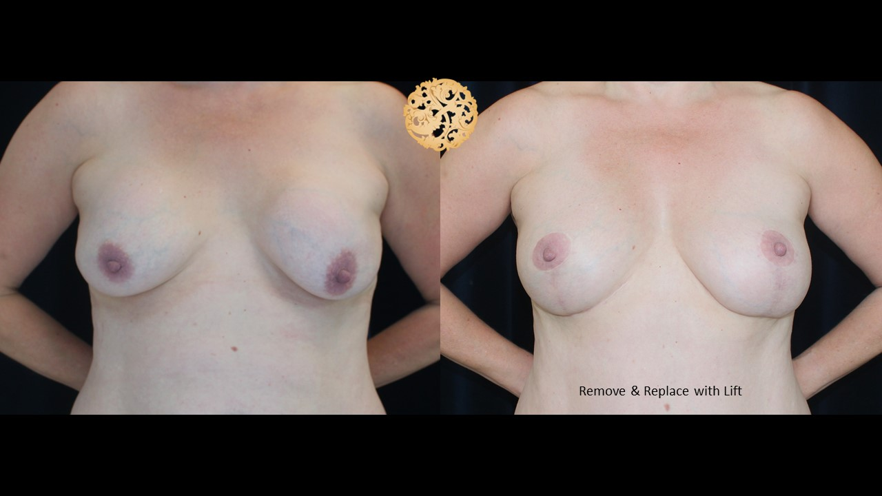 Breast Revision Gallery
