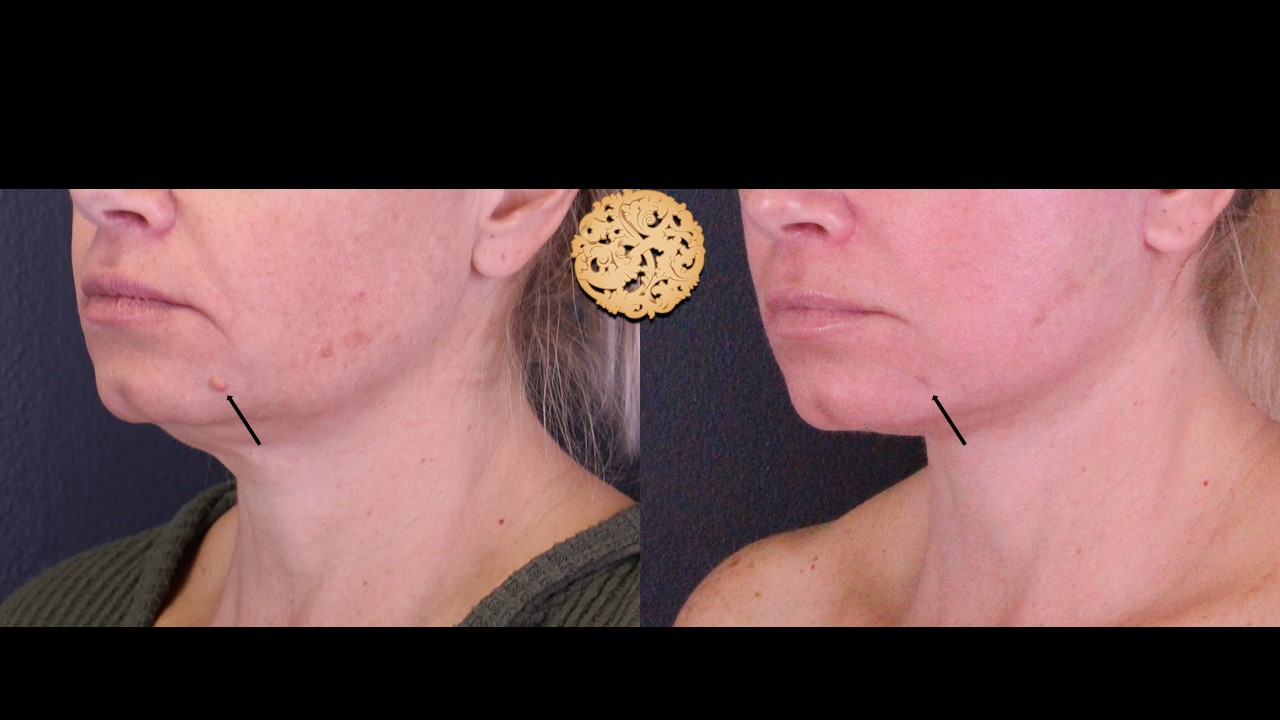 Cyst or Mole Removal Gallery