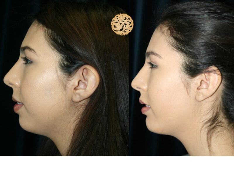 Procedure3_B_A_Otoplasty (1)