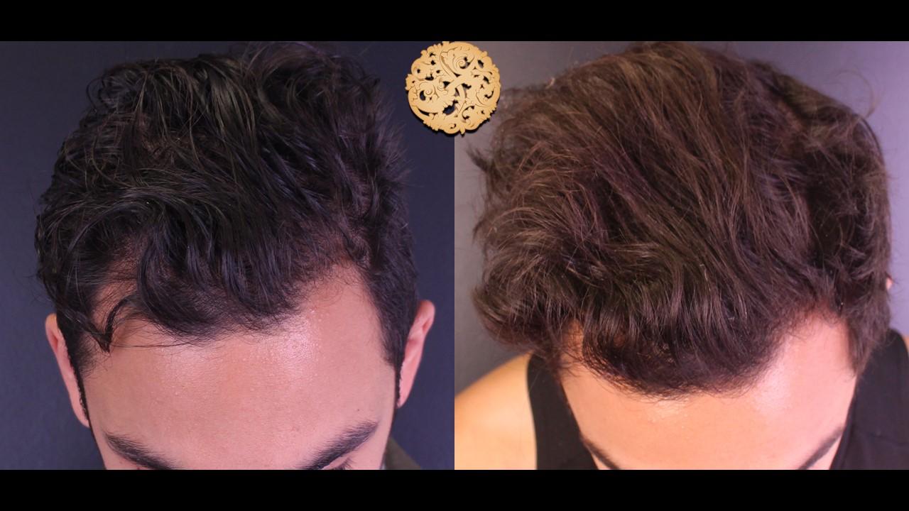 PRP Hair Rejuvenation Gallery