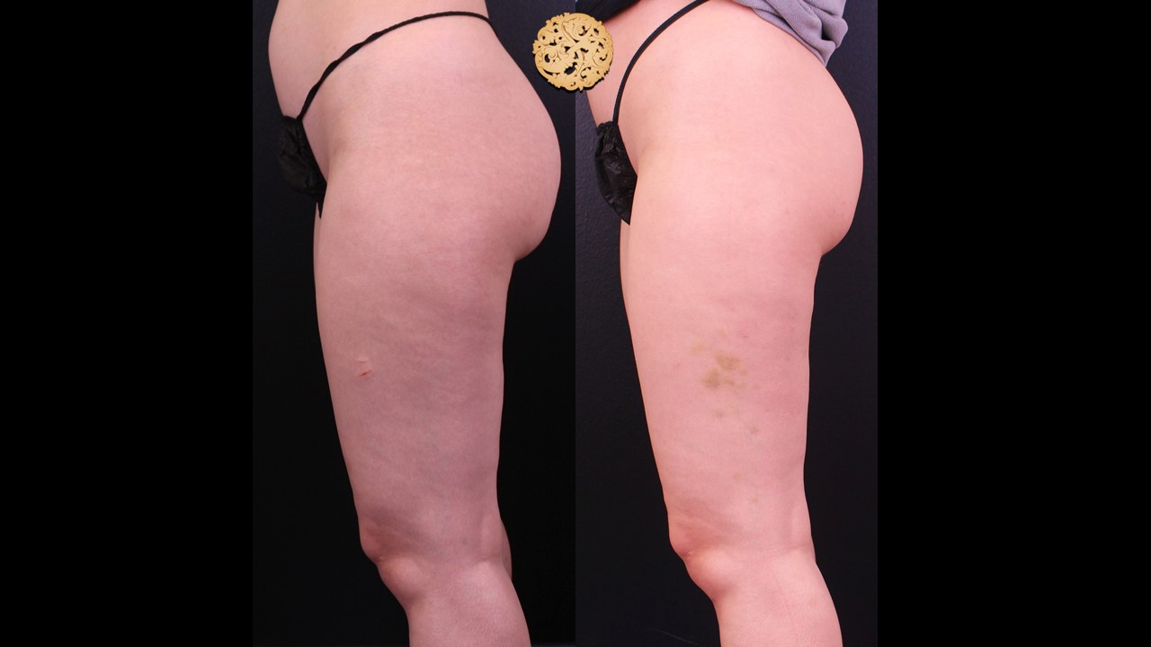 Cellulite Reduction