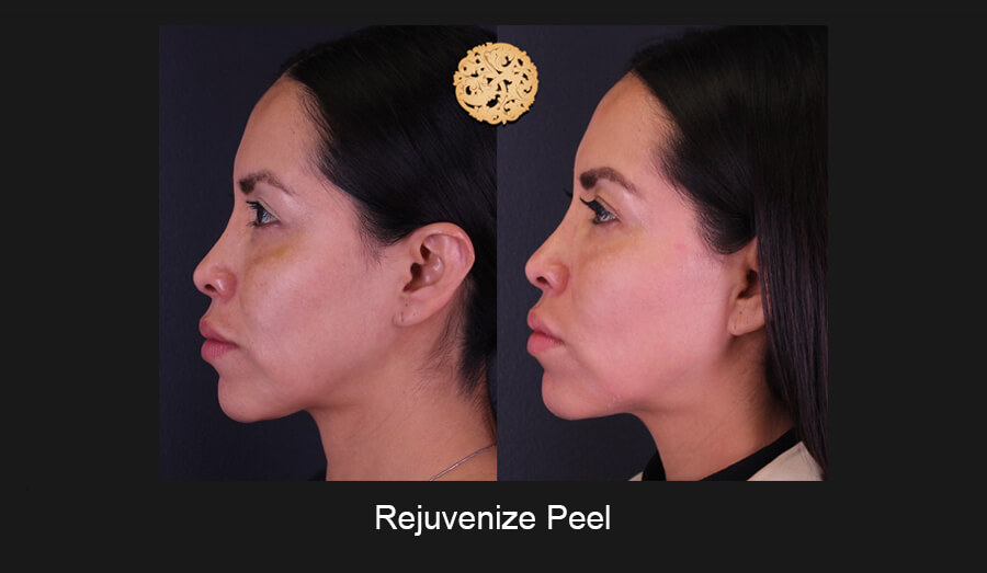 Chemical Peels Gallery