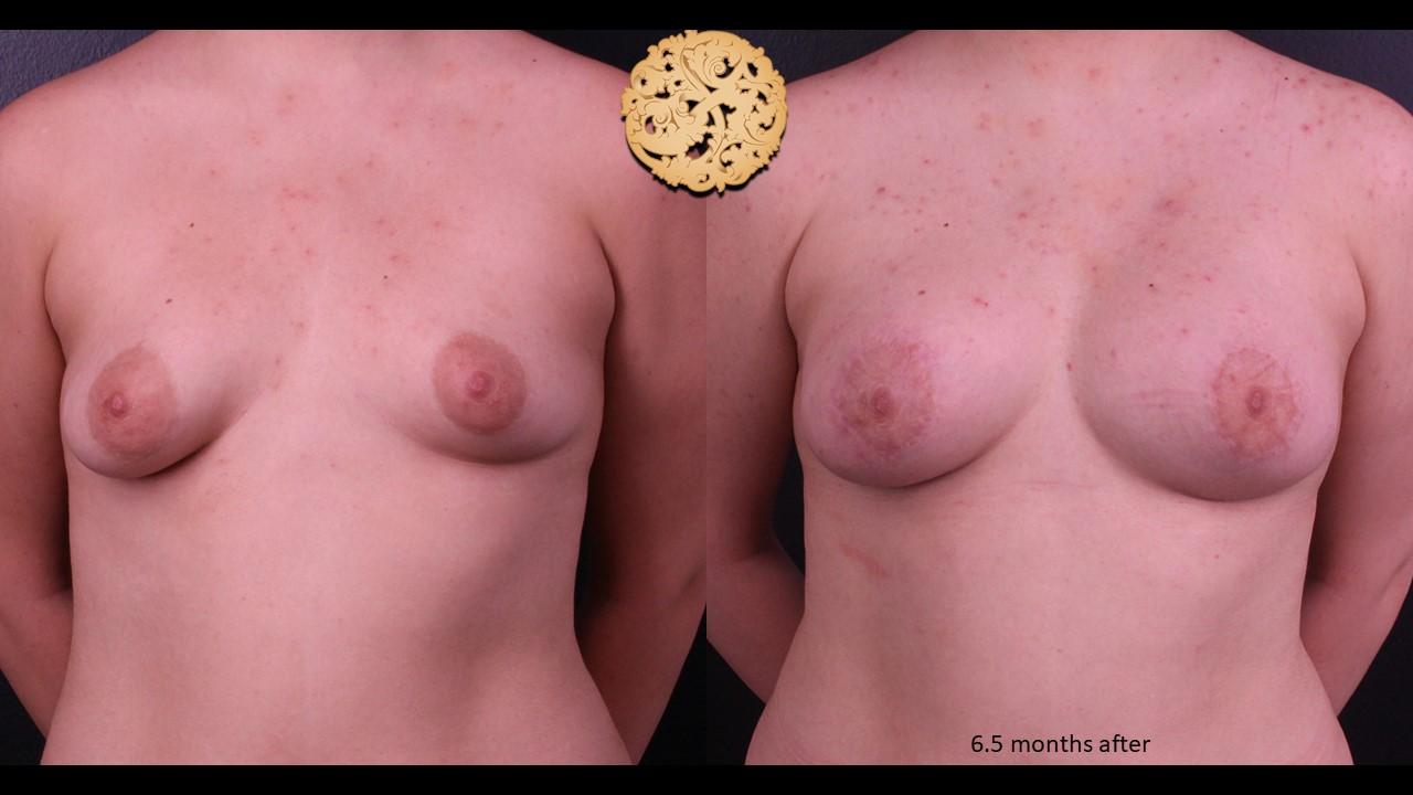 Nipple Reduction Gallery