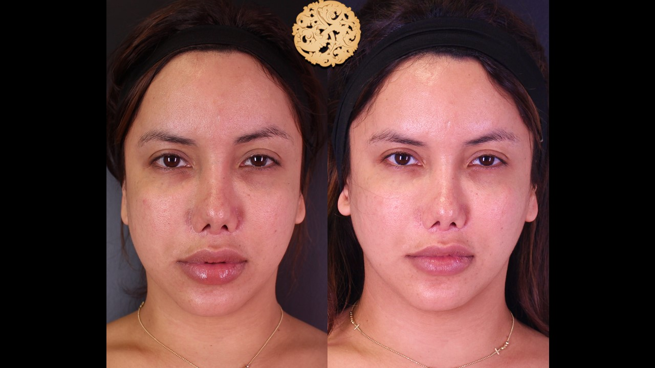 Buccal Fat Removal Before and After Gallery