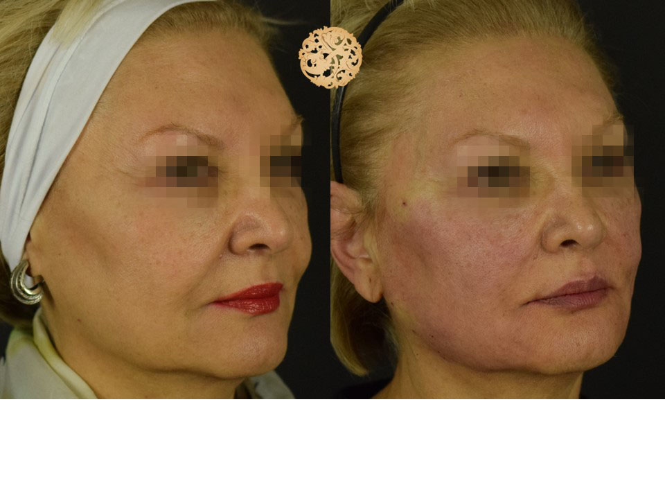 Facial Thread Lifting Before and After Gallery