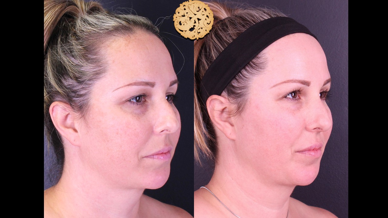 BBL Laser Skin Treatment Gallery