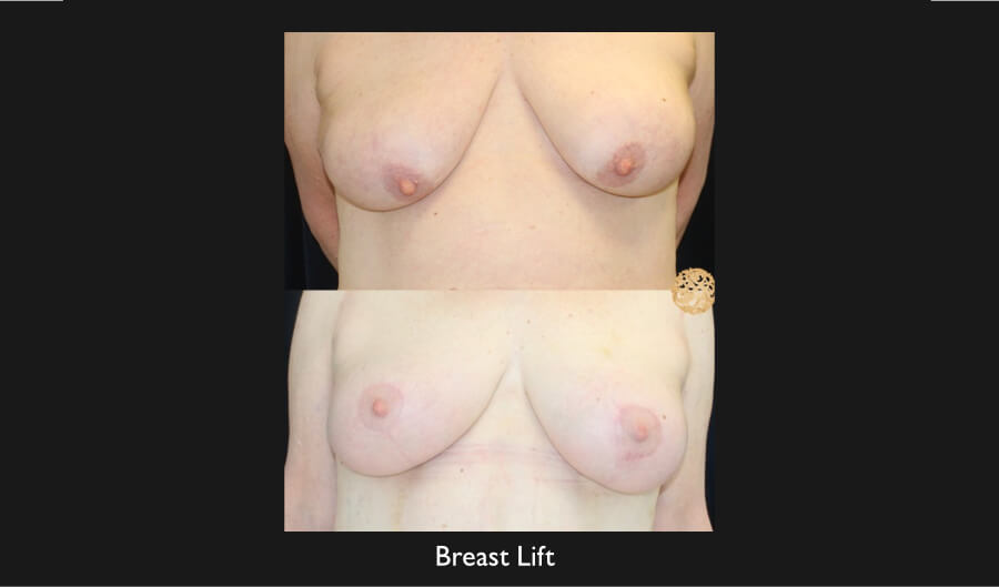 Breast Lift Gallery