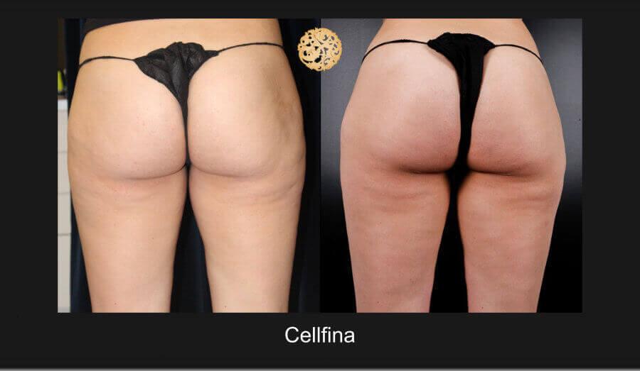 cellfina-12817-a