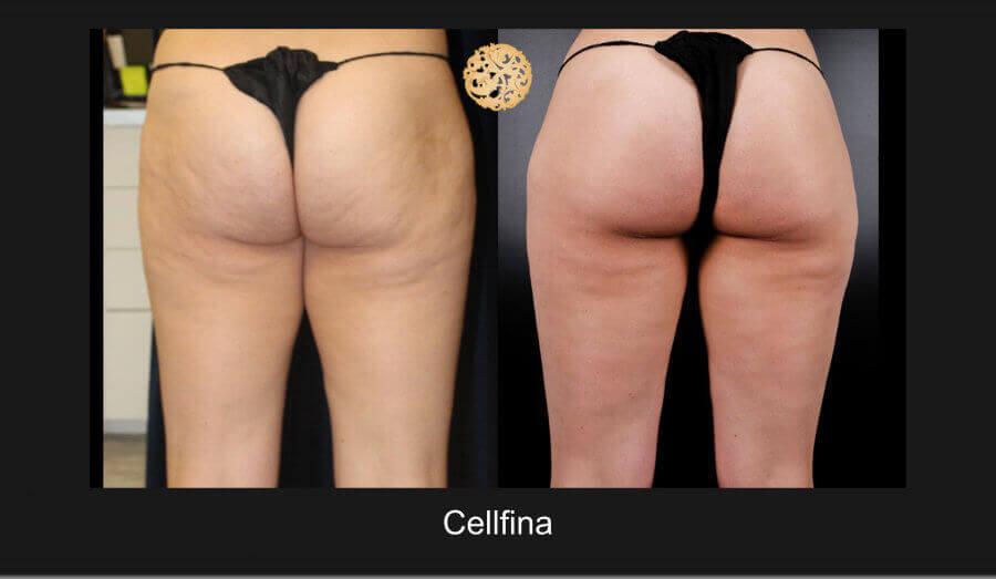 cellfina-12817-b