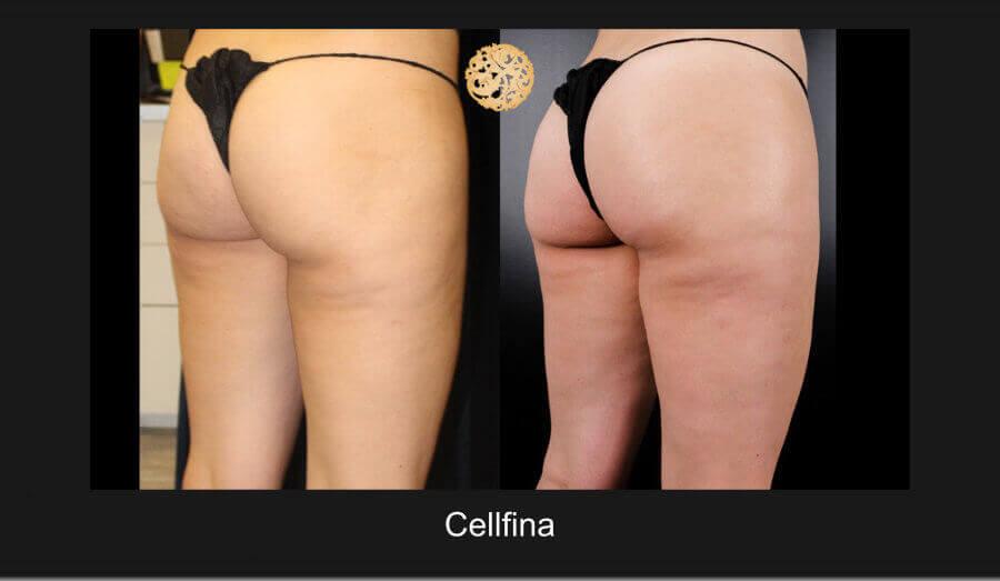 cellfina-12817-d