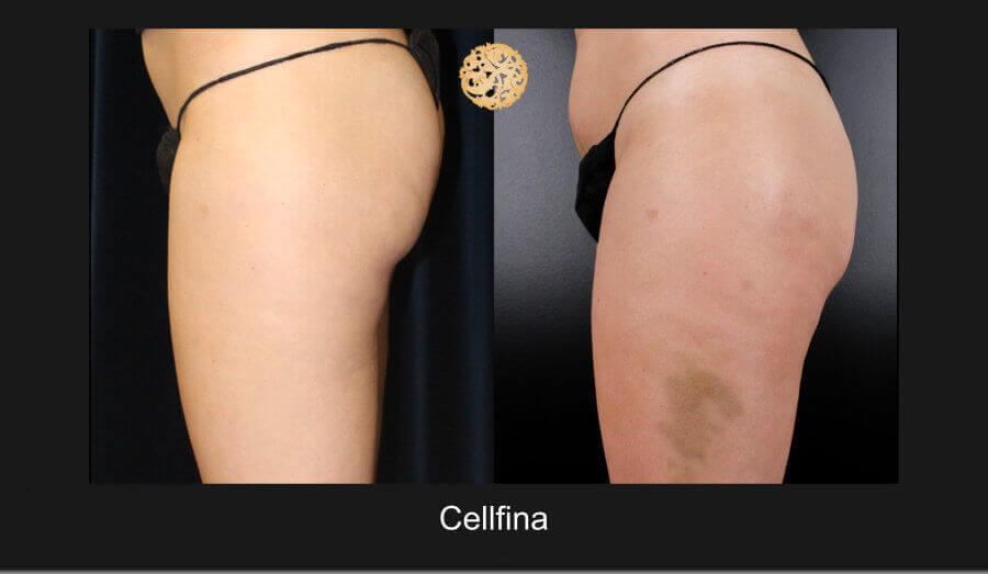 cellfina-12817-e