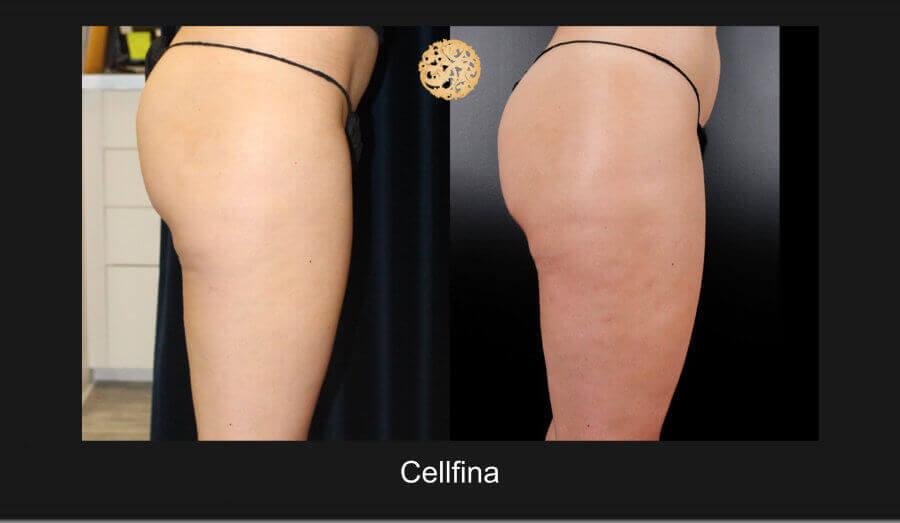 cellfina-12817-f