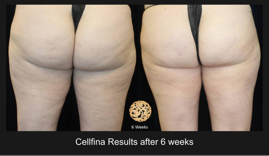 cellfina-1a (1)