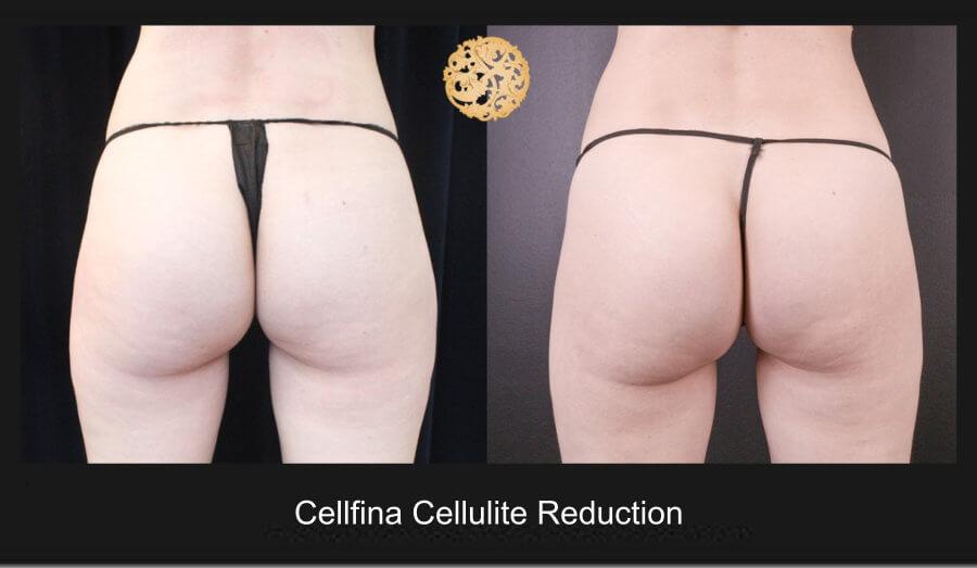 cellfina-1a