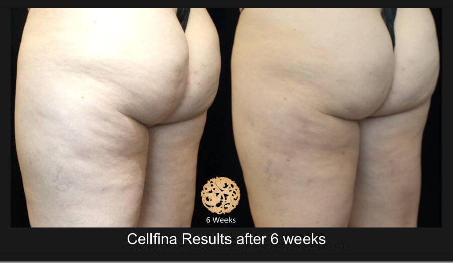 cellfina-1b (1)