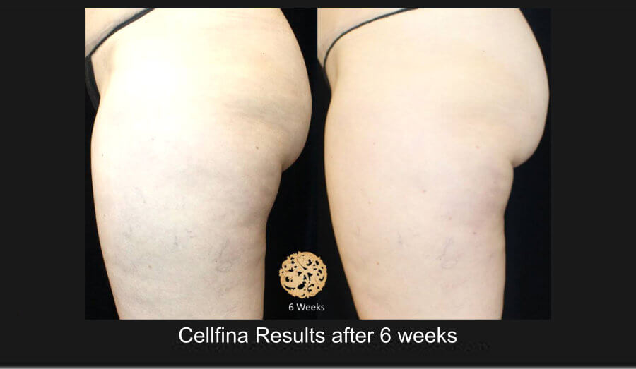 cellfina-1c (1)