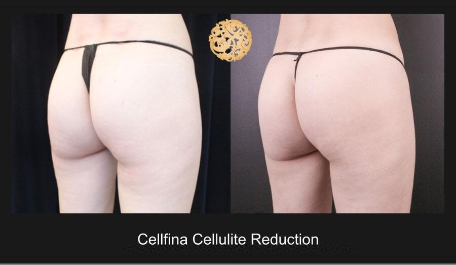 cellfina-1c