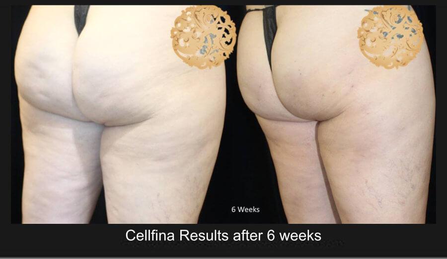 cellfina-1d (1)