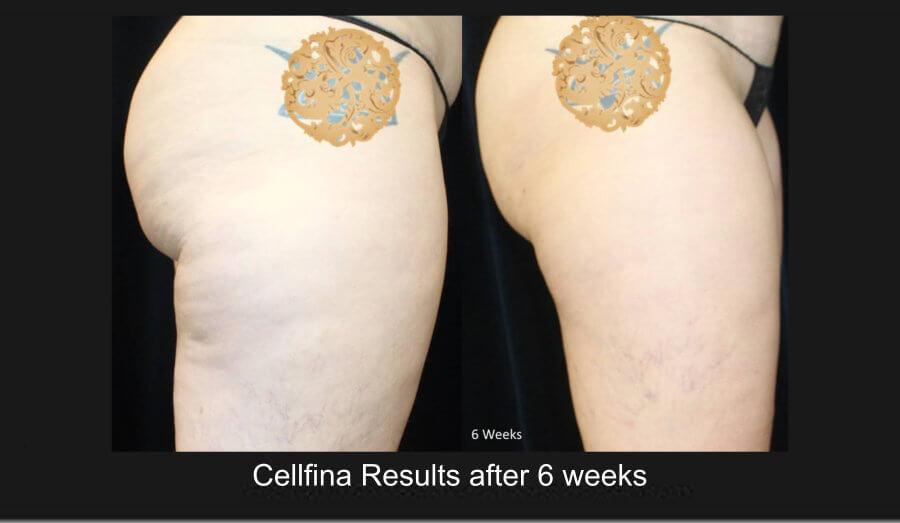 cellfina-1e (1)