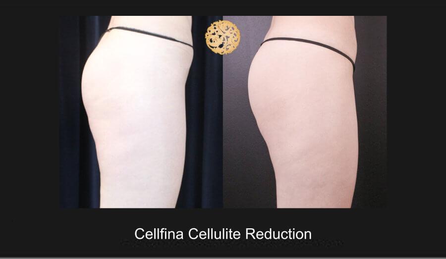 cellfina-1e