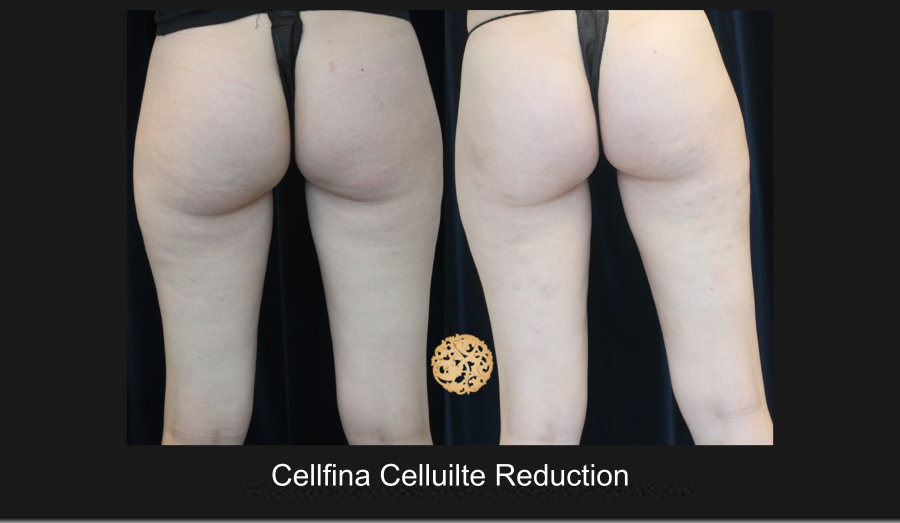 cellfina-2a