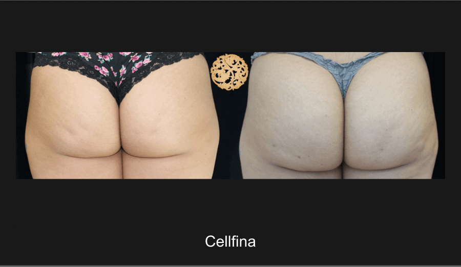 cellfina-ba-1