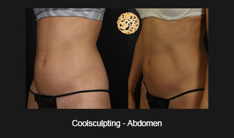 Coolsculpting Before and After Gallery | Abdomen/Flanks