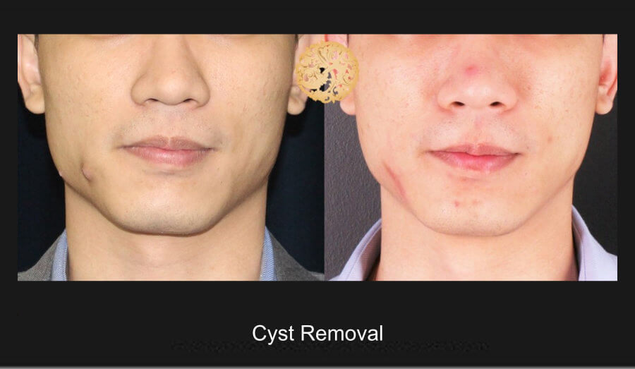 Cyst Removal – Before and After
