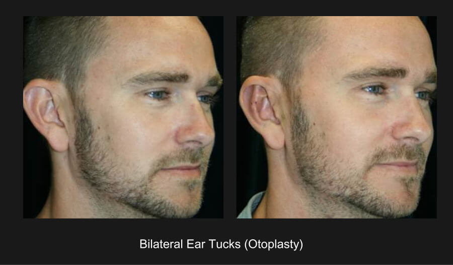 ears1-2