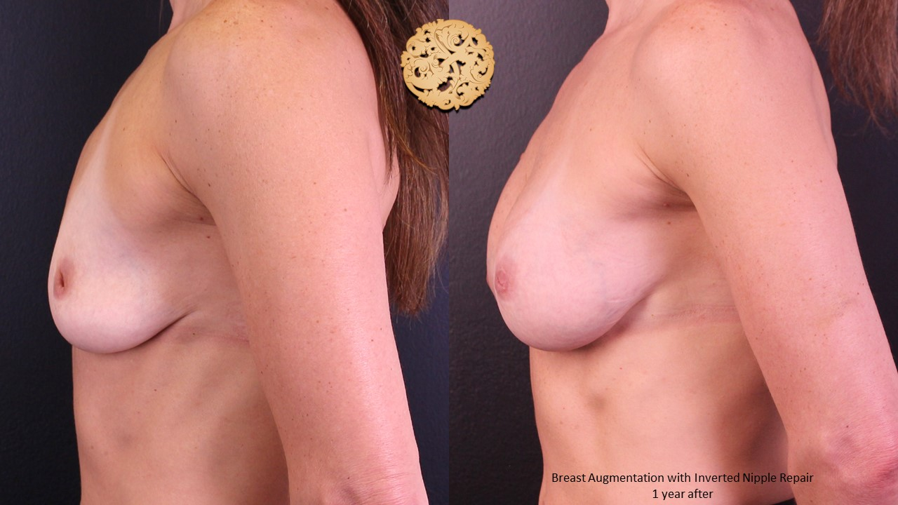 Inverted Nipple Correction Gallery