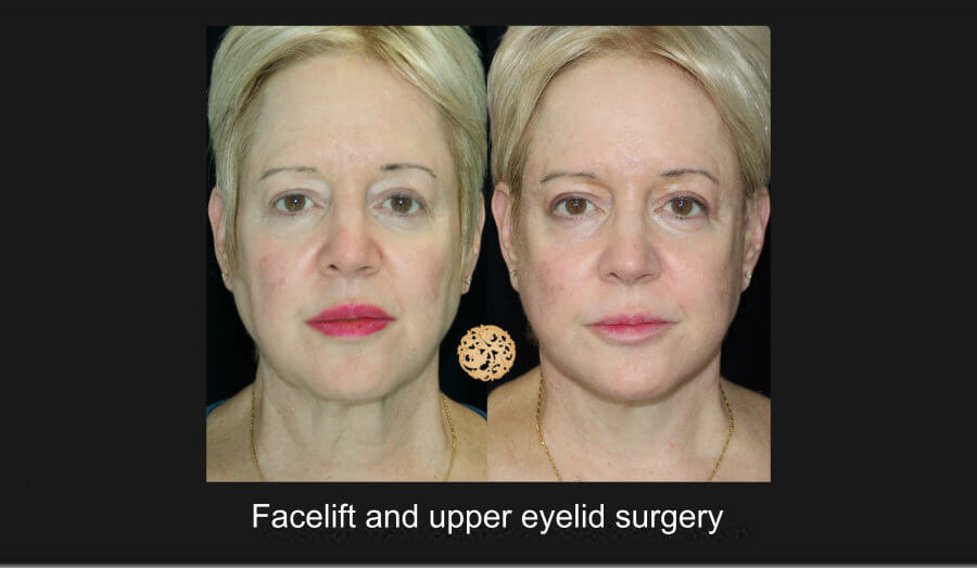 Face Lift and Neck Lift Gallery