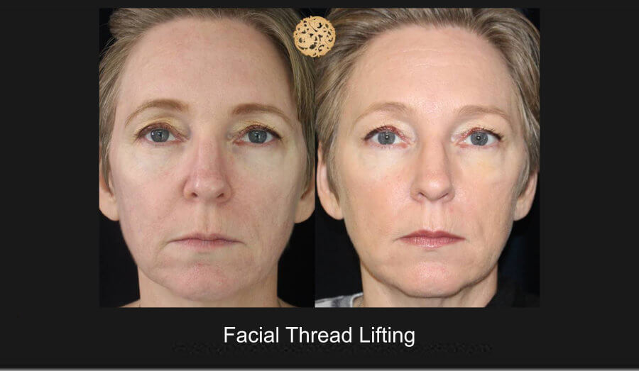facial-thread-lifting-1