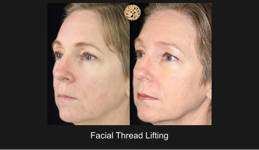 facial-thread-lifting-1a