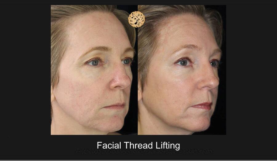 facial-thread-lifting-1b