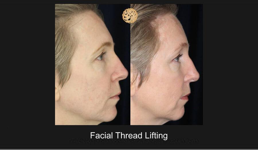 facial-thread-lifting-1c